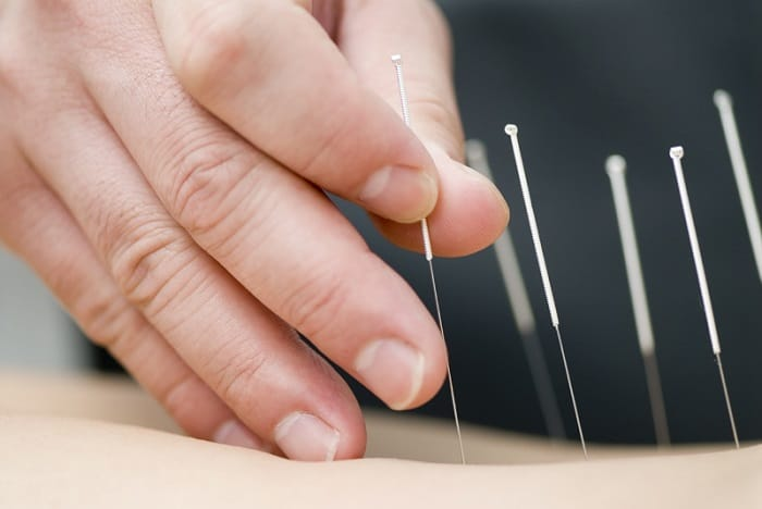 Dry needling / Acupuncture